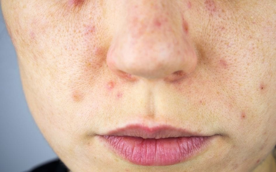 CBD oil for acne